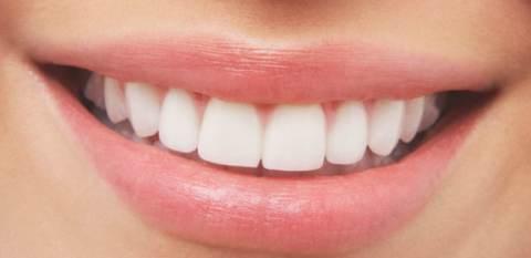 trattamenti tartaro denti