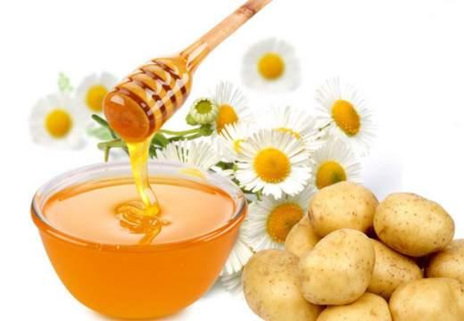 rimedi naturali con patate e miele