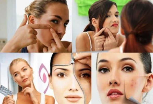come-eliminare-brufoli-acne