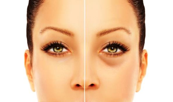 come-eliminare-occhiaie-rimedi-naturali