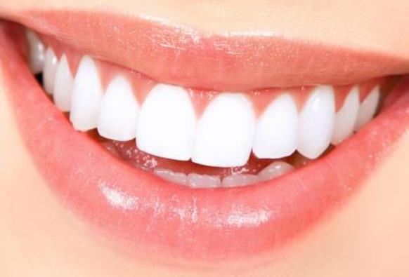 come-sbiancare-denti