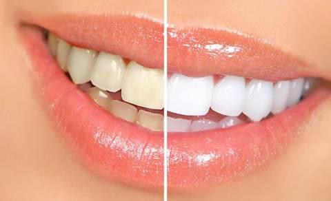 sbiancamento denti con curcuma