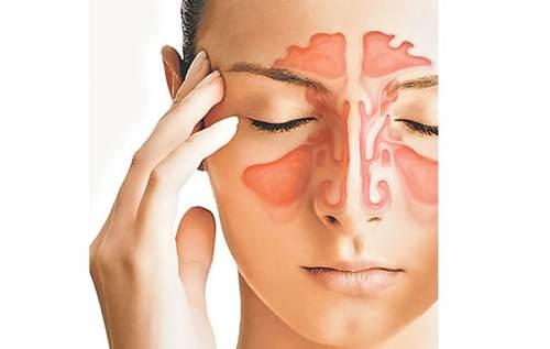 curare sinusite con i rimedi naturali