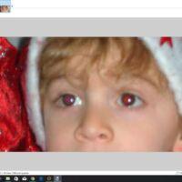 come si fa per rimuovere occhi rossi