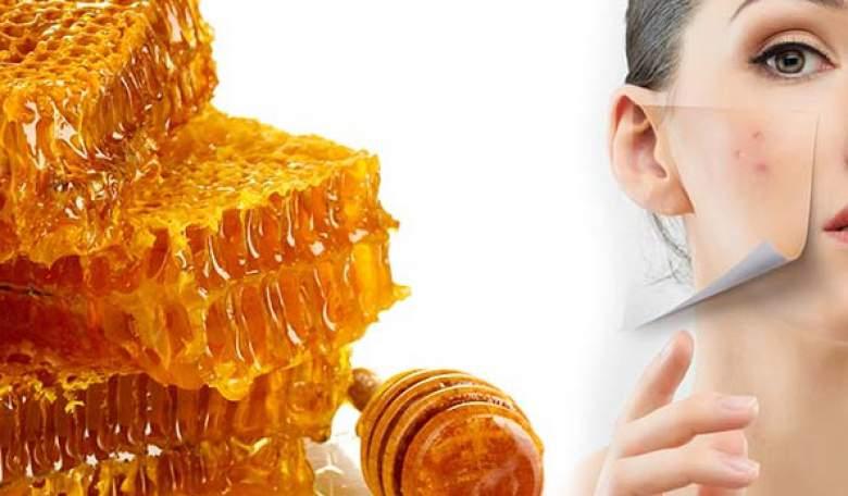 rimedi naturali per acne e brufoli