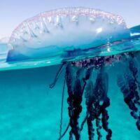 trattamenti pizzico medusa