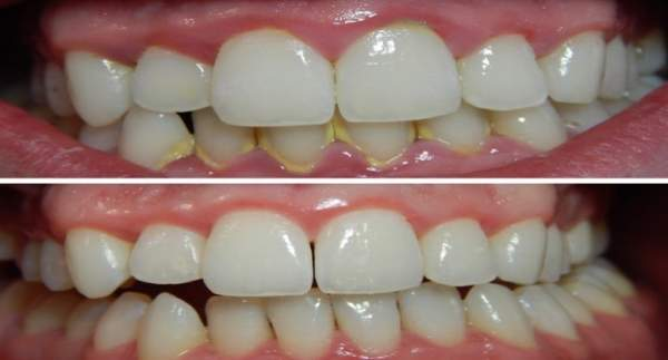 tartaro denti