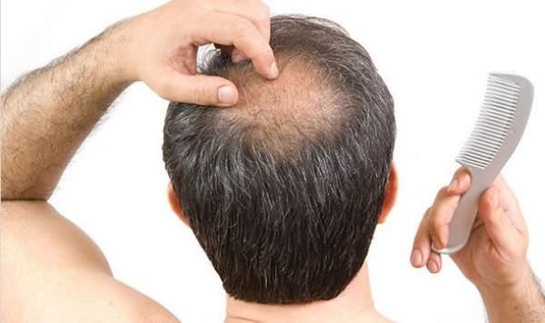 alopecia ereditaria