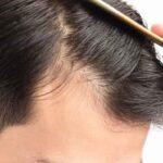 rimedi naturali per alopecia