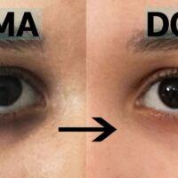 come coprire le occhiaie scure